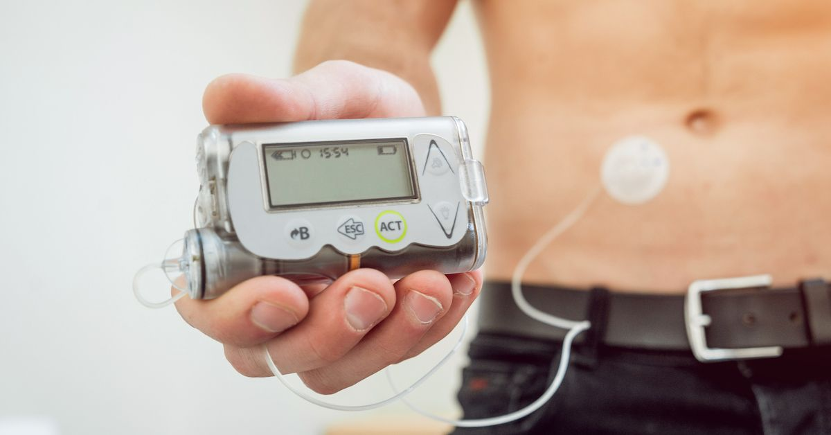 Insulin Pump Defect Impacting Diabetics